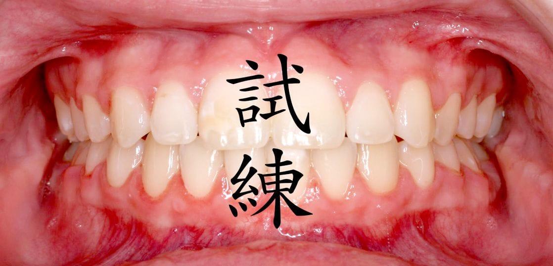 留学している学生の中で世界一歯並びが悪いのは日本人だった。シリーズ「留学の試練」